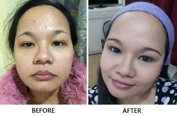 Bio oil review before and after
